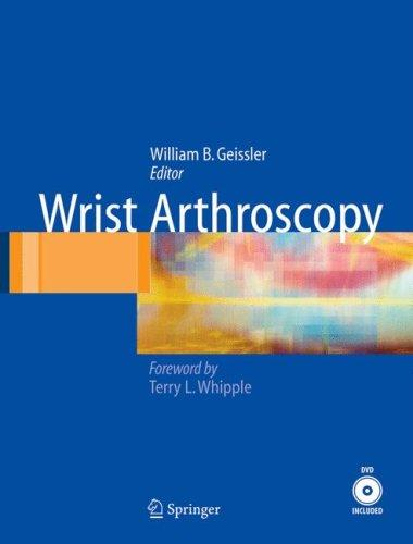 Wrist Arthroscopy by William Geissler